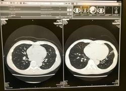CT画像.jpg